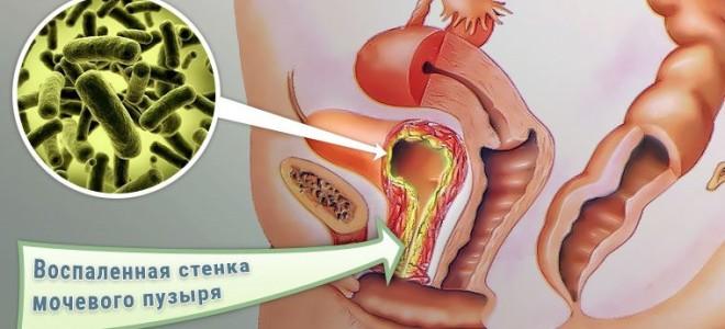 Бактериальный цистит у женщин: лечение