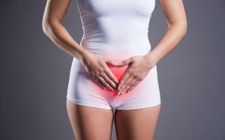 Обострение цистита во время месячных: причины и лечение