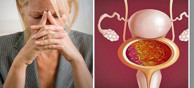 Цистит при климаксе: лечение препаратами и народными средствами
