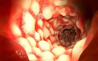 Кандидоз кишечника: симптомы и лечение