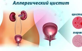 Аллергический цистит: симптомы и принципы лечения