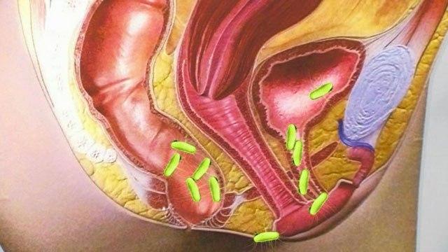 Посткоитальный цистит - у женщин, причины, симптомы, лечение