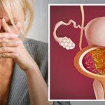 Цистит при менопаузе - лечение у женщин, препараты