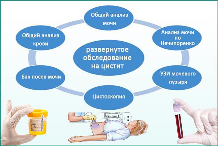диагностические меры при воспалении мочевика