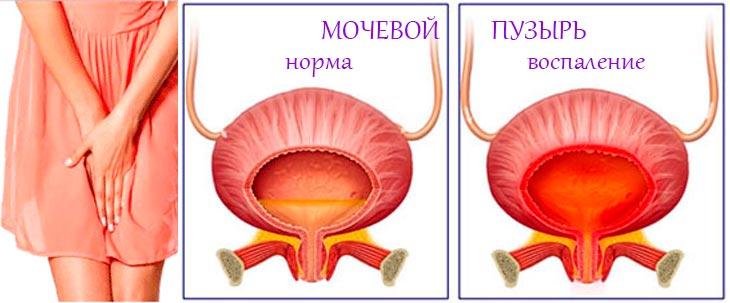 воспаление шейки мочевого пузыря