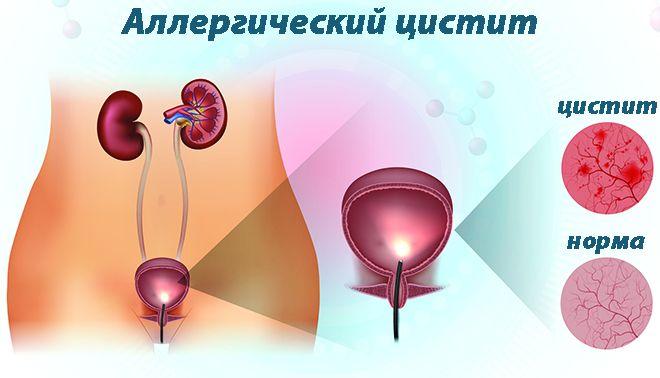 воспаление в мочевом пузыре