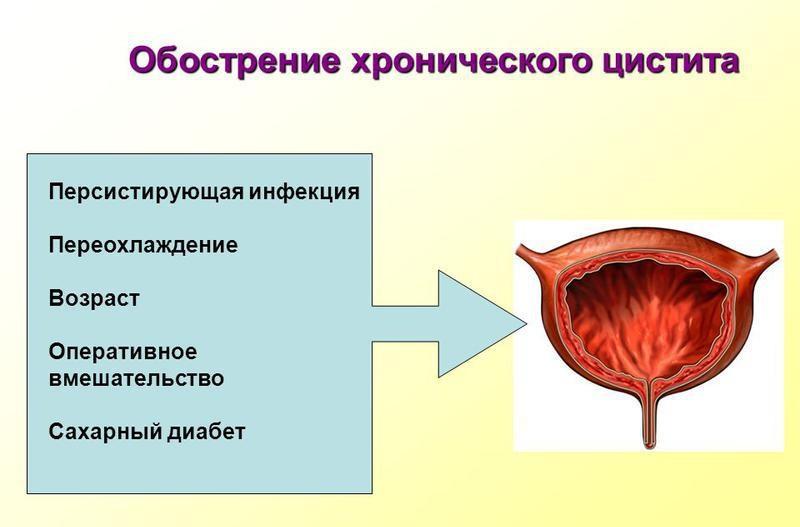 причины частого воспаления мочевика