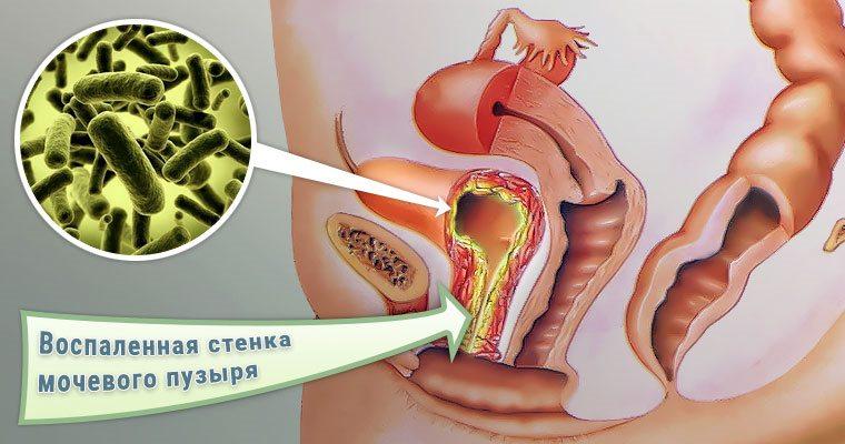 воспаление мочевого пузыря инфекционного происхождения