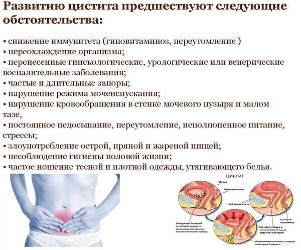 Синовит  что это такое симптомы лечение и причины